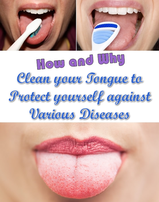 Clean your Tongue to Protect yourself against Various Diseases!