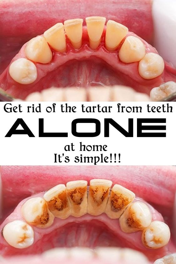 Get rid of the tartar from teeth ALONE at home! It is simple!