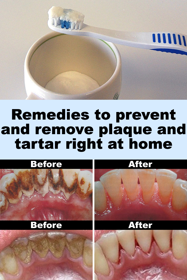 Remedies to prevent and remove plaque and tartar right at home