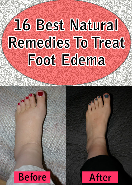 16 Best Natural Remedies To Treat Foot Edema