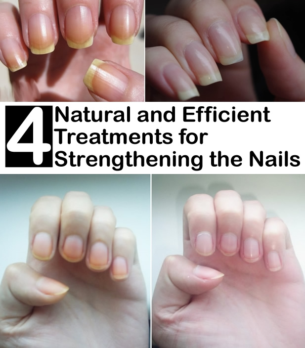 4 Natural and Efficient Treatments for Strengthening the Nails