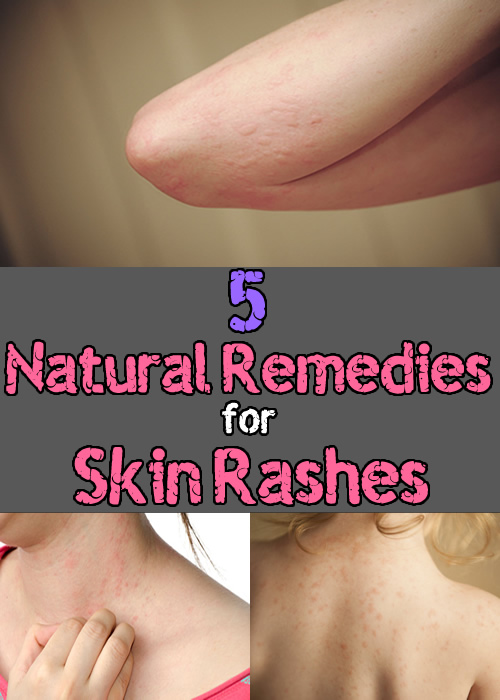 5 Natural Remedies for Skin Rashes