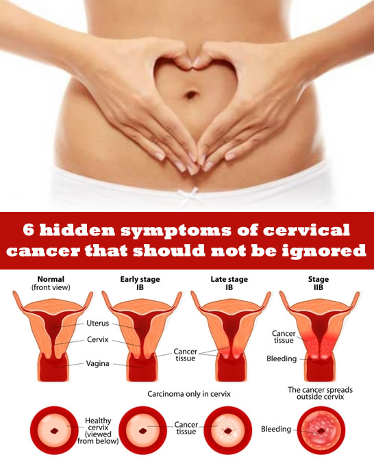 6 hidden symptoms of cervical cancer that should not be ignored