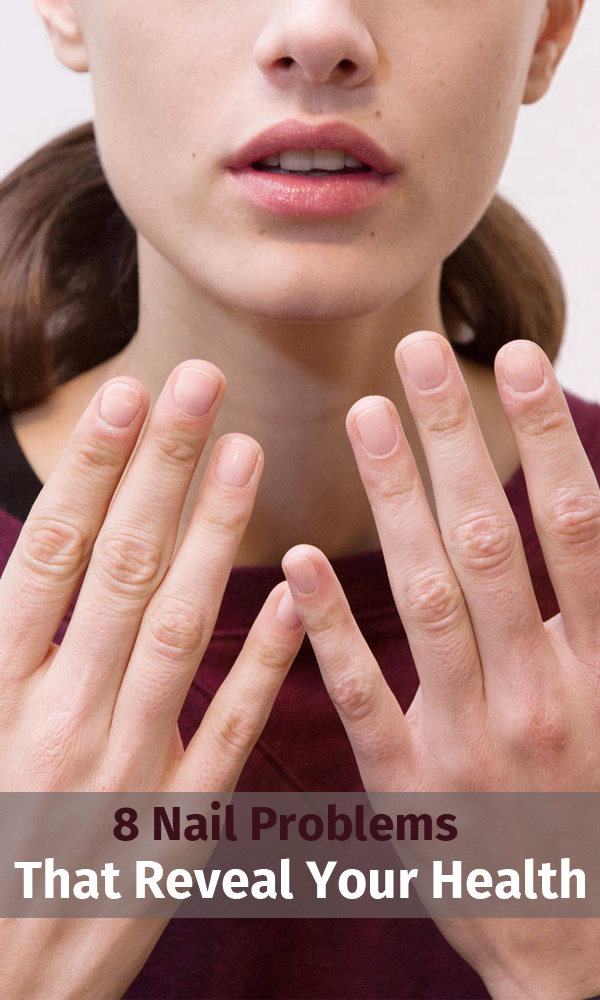 8 Nail Problems That Reveal Your Health