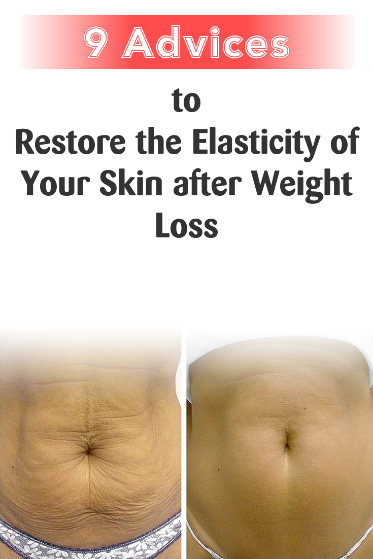 9 Advices to Restore the Elasticity of Your Skin after Weight Loss