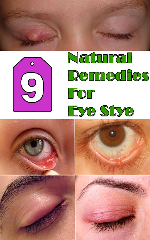 9 Natural Remedies For Eye Stye