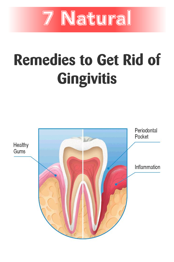 Get Rid of Gingivitis with These 7 Natural Remedies