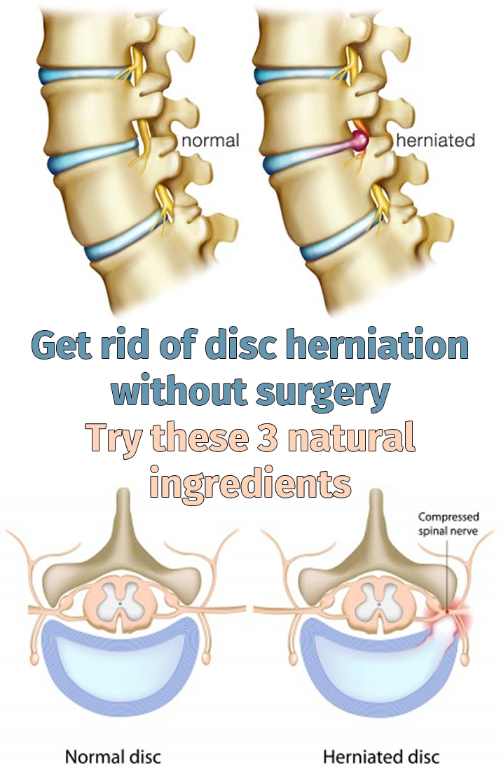 get rid of disc herniation without surgery