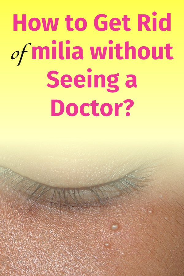 How to Get Rid of milia without Seeing a Doctor