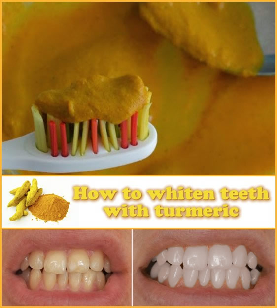 How to whiten teeth with turmeric
