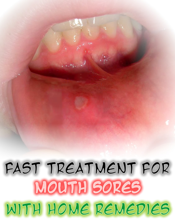 Mouth Sores Home Remedies