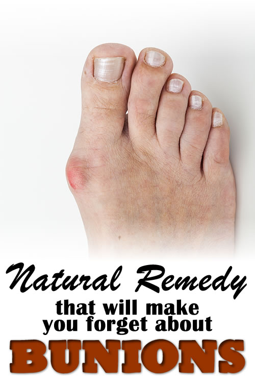 Natural Remedy that Will Make You Forget about Bunions