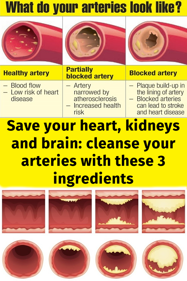 Save your heart kidneys and brain cleanse your arteries with these 3 ingredients