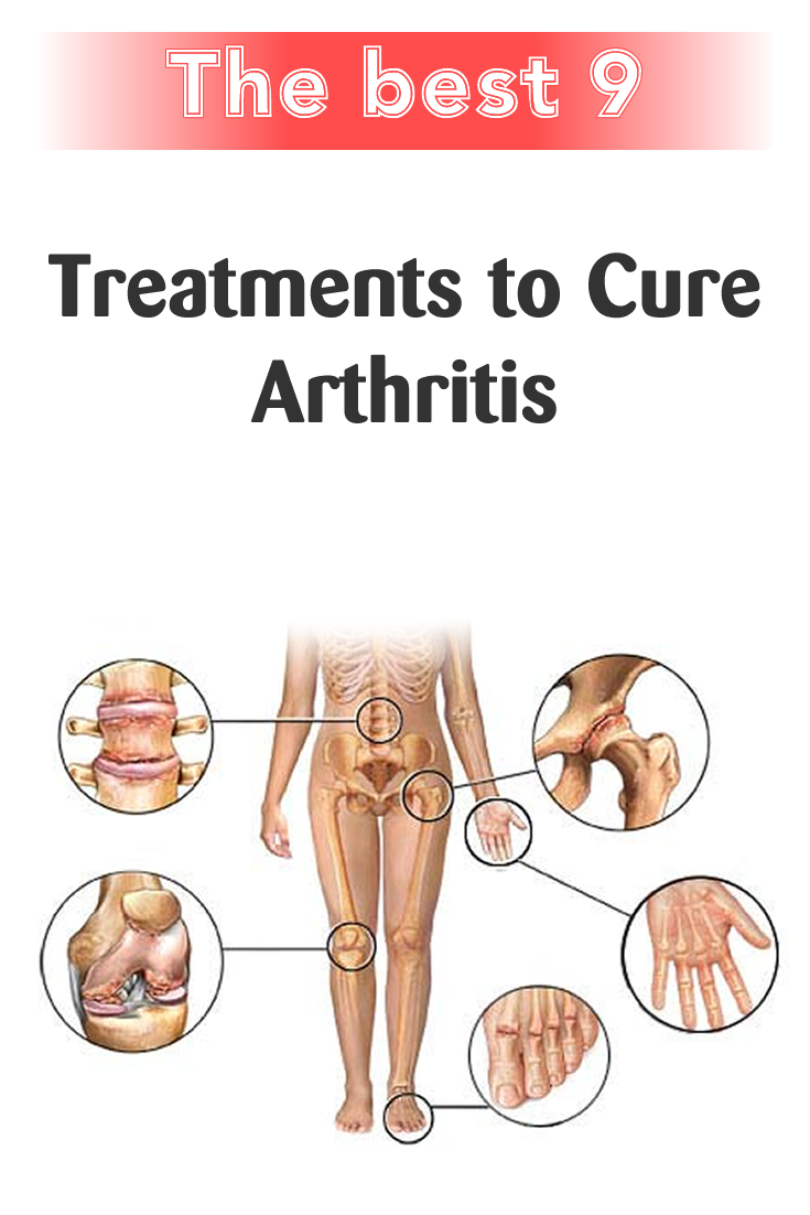 The Best 9 Treatments to Cure Arthritis