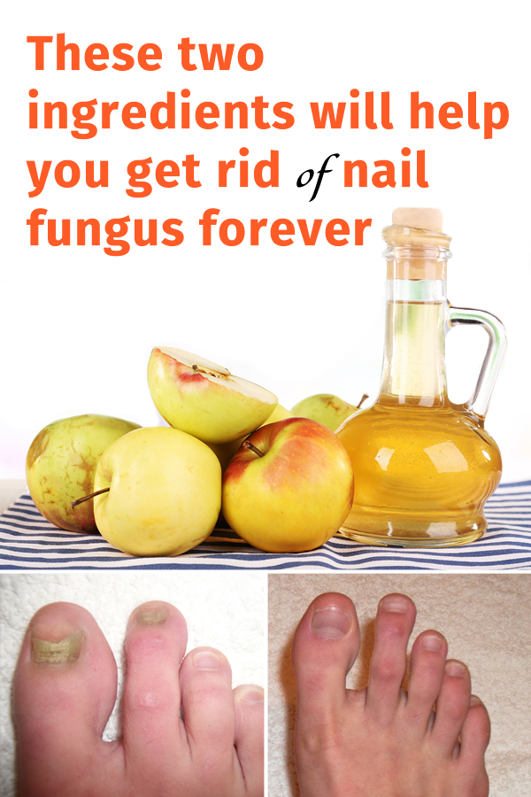These two ingredients will help you get rid of nail