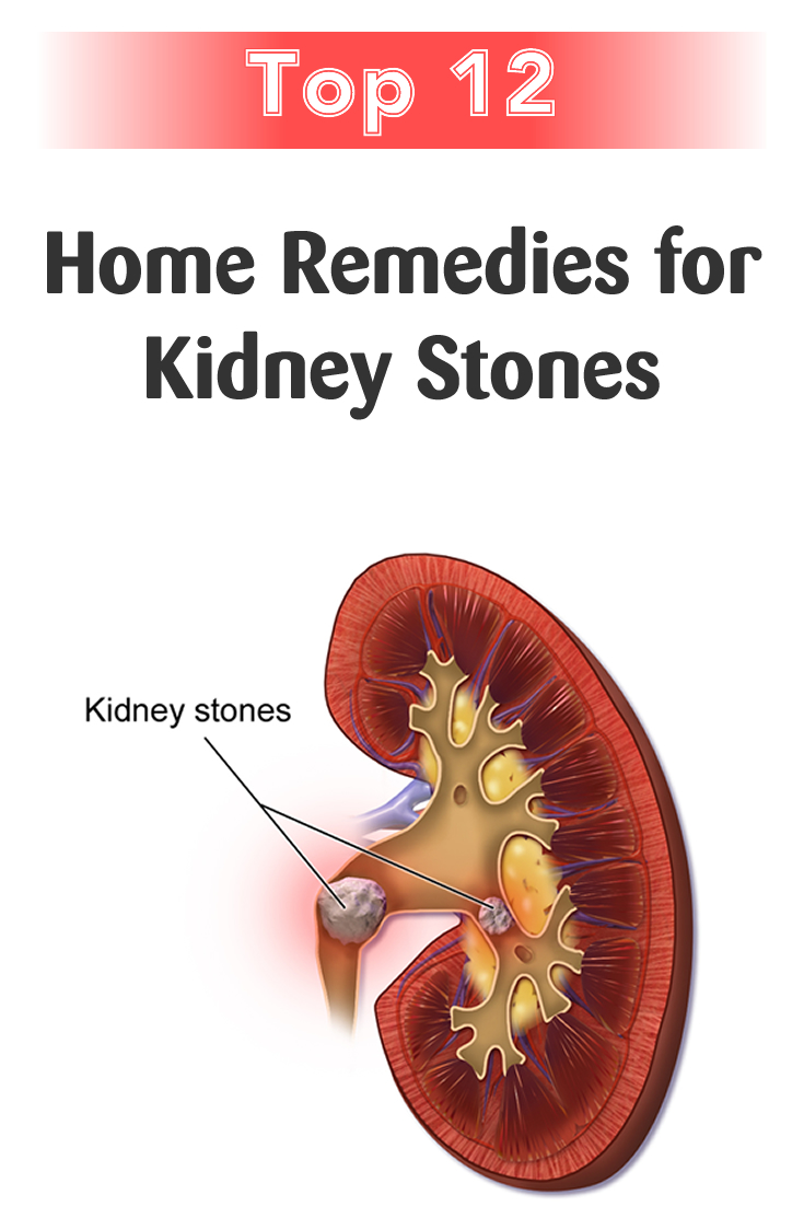 Top 12 Home Remedies for Kidney Stones