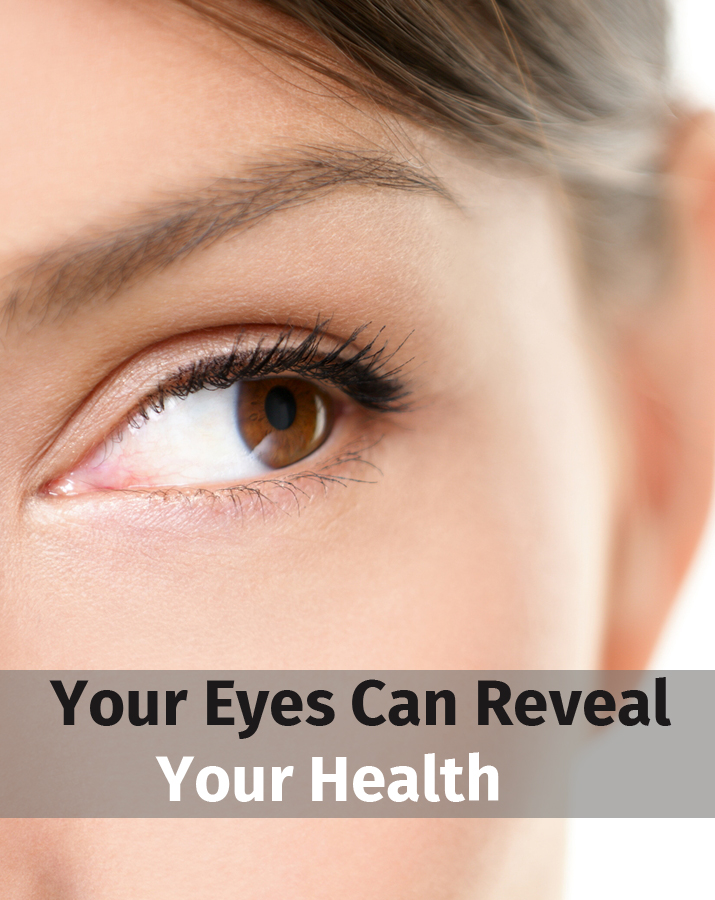 Your Eyes Can Reveal Your Health