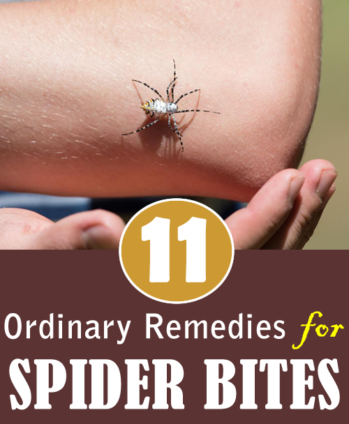 11 Ordinary Remedies for Spider Bites