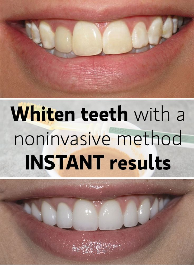 White teeth instantly